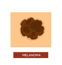 Melanoma or skin cancer disease dangerous mole vector