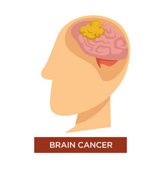 Oncology disease brain cancer and chemotherapy vector