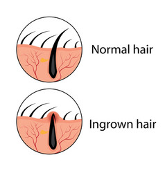 normal and ingrown hair vector image