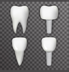 Dental implant realistic 3d tooth poster vector
