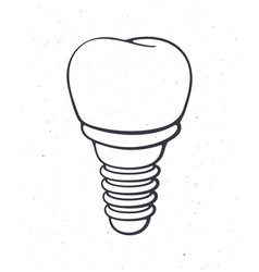 Dental implant human tooth outline vector