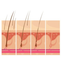 Hair Loss Skin Concept vector image