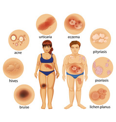 Diagram showing different skin diseases vector