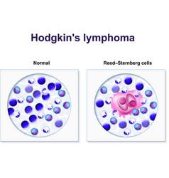 Hodgkins lymphoma vector