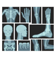X rays human body medical equipment vector