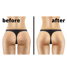 anticellulite ass massage before and after vector image