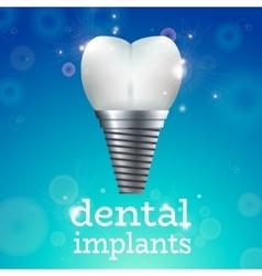 Dental implants 1 vector image
