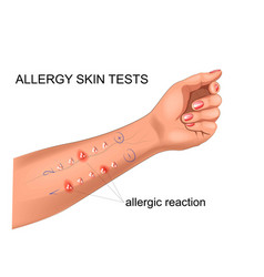 scarification tests for allergies vector image