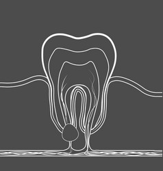 Dental disease linear icon medical of tooth root vector