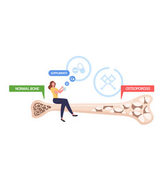 Osteoporosis health care tiny female character vector