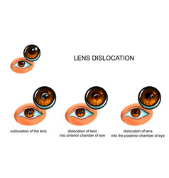 Dislocation of the lens of the eye vector