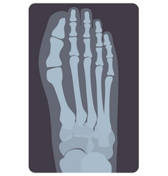 Superior radiograph of human right foot or limb x vector