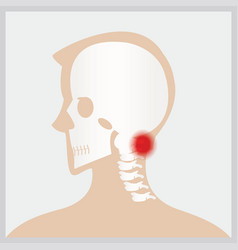 disease of head and neck vector image