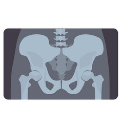 Anterior radiograph of human pelvis or hip bone vector