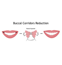The smile with large and dark buccal corridor vector