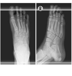 Human foot ankel and leg xray top and right scan vector