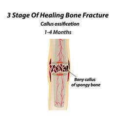 3 stage healing bone fracture callus vector