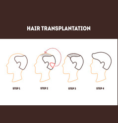 thin line hair transplant surgery card poster vector image