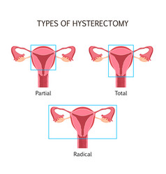 Types of hysterectomy vector