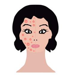 Rash on face allergy dermatitis acne pimples vector