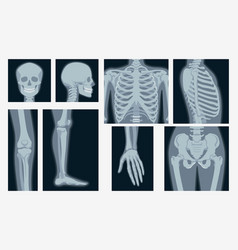 different x-rays shot human body part set vector image