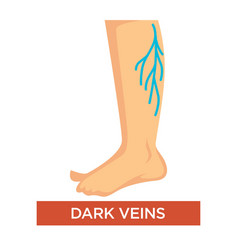 Dark varicose veins on legs symptom with feet vector