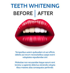 teeth whitening poster vector image