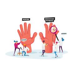 Rheumatoid arthritis concept tiny doctor vector