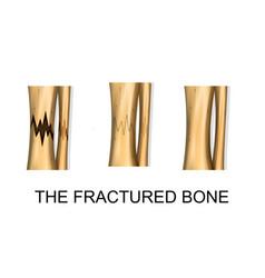 bone fracture trauma vector image vector image