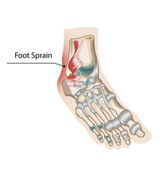 Foot Sprain vector image
