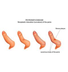 chordee peyronies disease vector image