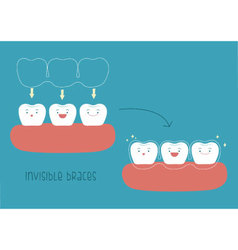 How to invisible braces tooth concept vector