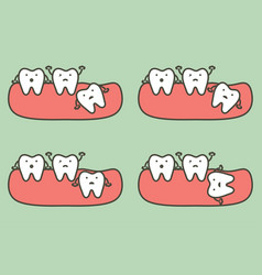 Wisdom tooth type vector