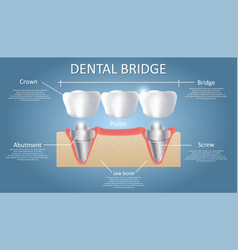 Dental bridge concept educational poster vector
