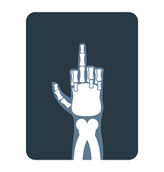 X-rays to Bones hands show thumbs up Obscene vector