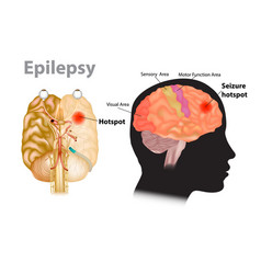 Medical a brain with epilepsy vector