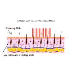laser hair removal treatment procedure causes vector image