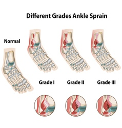 Different grades of ankle sprains vector image vector image