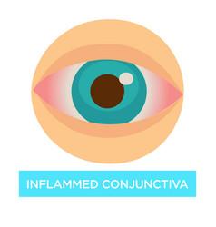 Inflamed conjunctiva conjuntivitis sore eye vector