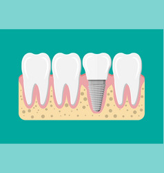 Tooth restoration dental implant vector