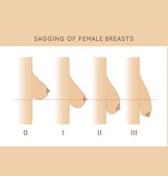 Female breast sagging vector