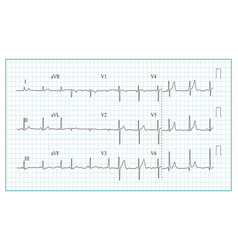 heart cardiogram chart of vector image