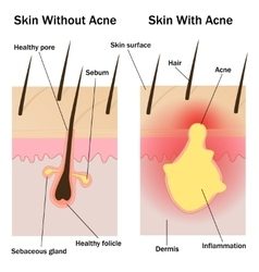 Skin with and without acne vector