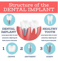 Dental implant structure vector