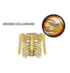 fracture of the clavicle osteosynthesis vector image