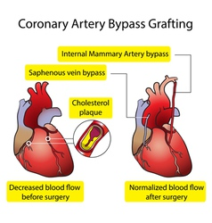 Vessels of the heart bypass surgery vector image