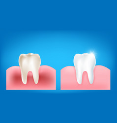collection of dirty tooth and gum compare with vector image