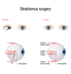 Strabismus surgery eye muscle recession vector