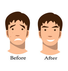 Boy acne treatment before and after vector