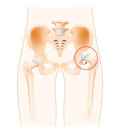 Dislocation of hip vector